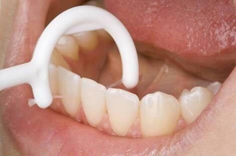 Diş arasına kaçan artıklar en sağlıklı nasıl temizlenir? Diş ipi ile sıkışan et parçalarından kurtulmak 1